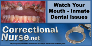 Watch Your Mouth - Inmate Dental Issues