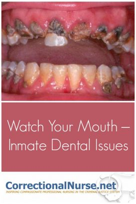 Unlike almost any other specialty area, correctional nurses get involved with inmate dental issues. We must do treatment and referral for oral conditions.