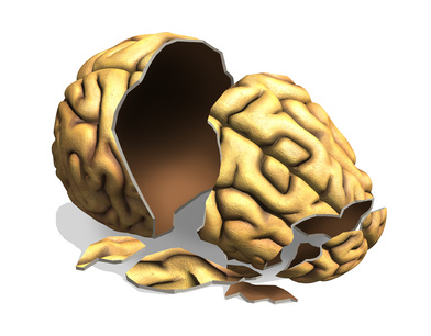 Misconceptions About Traumatic Brain Injury in Correctional Health Care