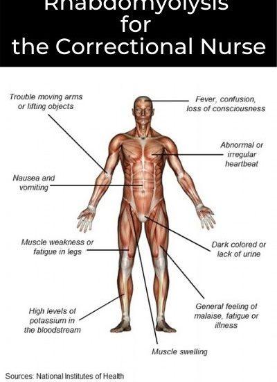 Rhabdomyolysis in Corrections