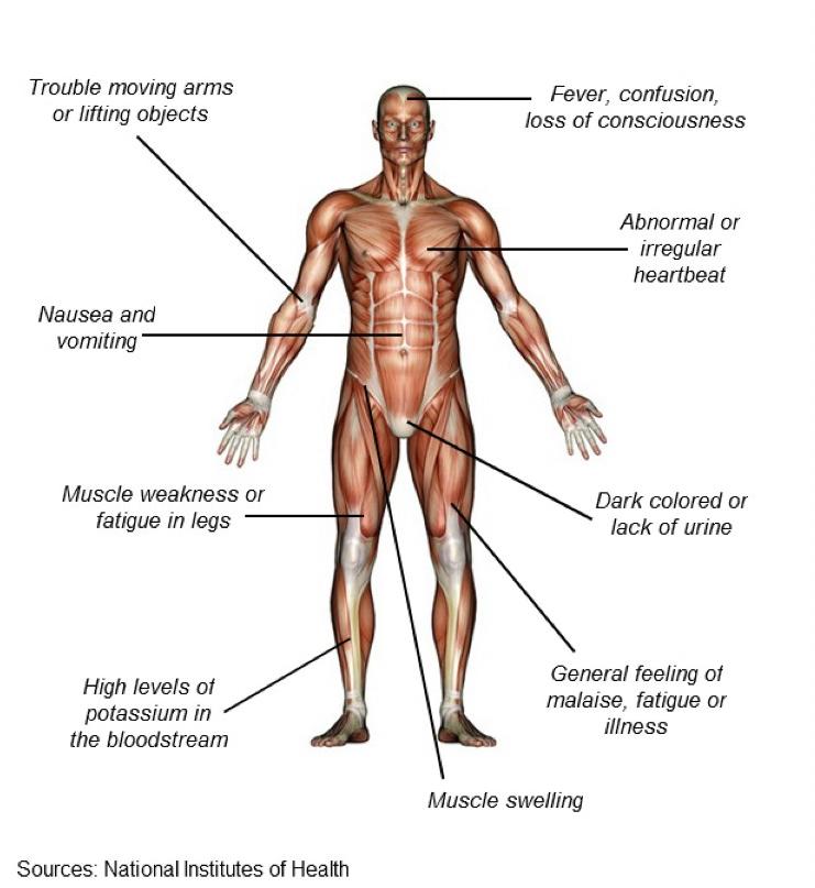 Rhabdomyolysis for the Correctional Nurse
